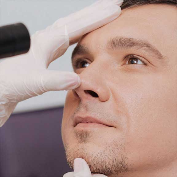 Nose Doctor in Lakewood, NJ